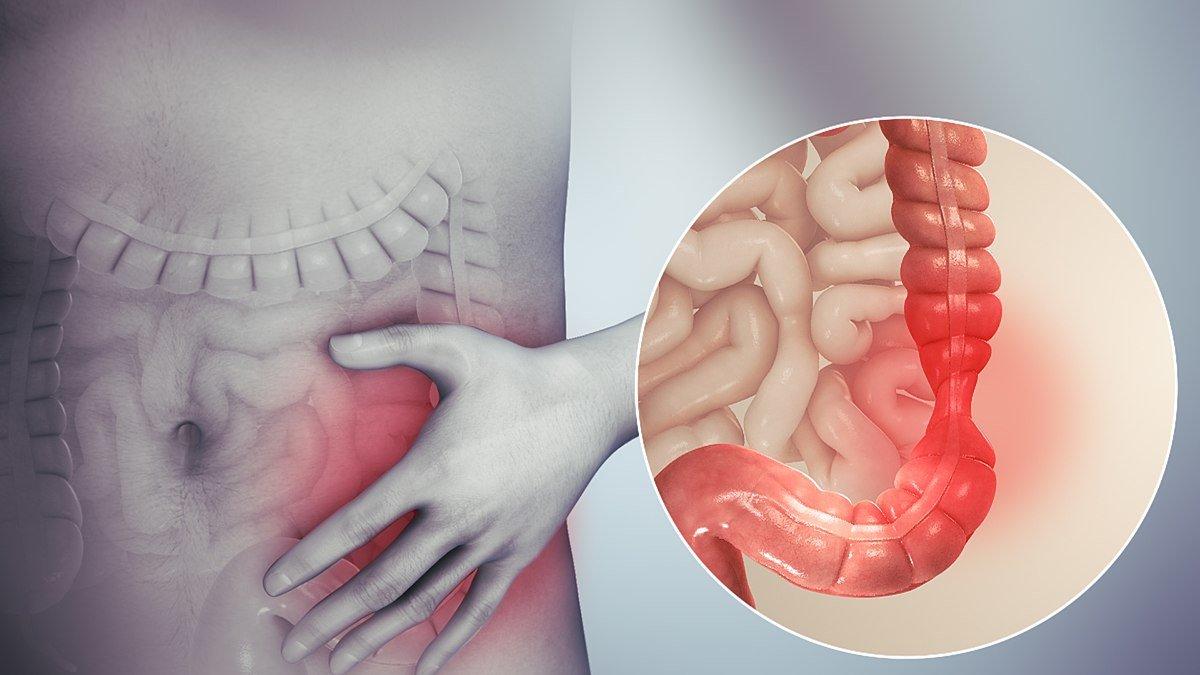 sindrom-na-razdraznenoto-debelo-chervo-IBS.jpg